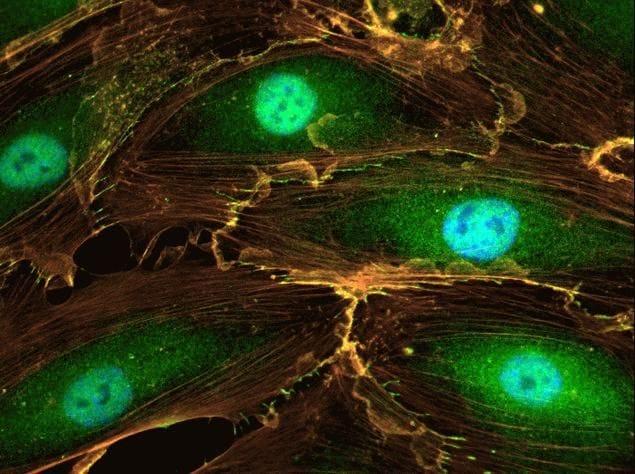 Rabbit IgG (H+L) Secondary Antibody in Immunofluorescence (IF)