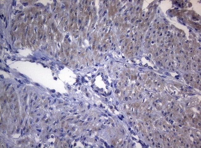 RAB3A Antibody in Immunohistochemistry (Paraffin) (IHC (P))