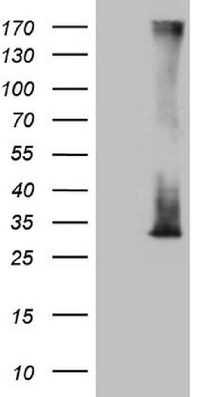 RAB3A Antibody in Western Blot (WB)