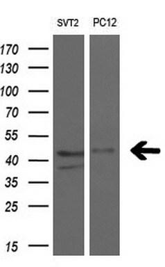 RAD51L1 Antibody in Western Blot (WB)