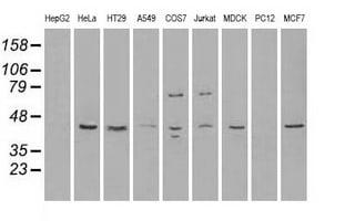 RAD9A Antibody in Western Blot (WB)