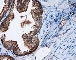 RALBP1 Antibody in Immunohistochemistry (Paraffin) (IHC (P))
