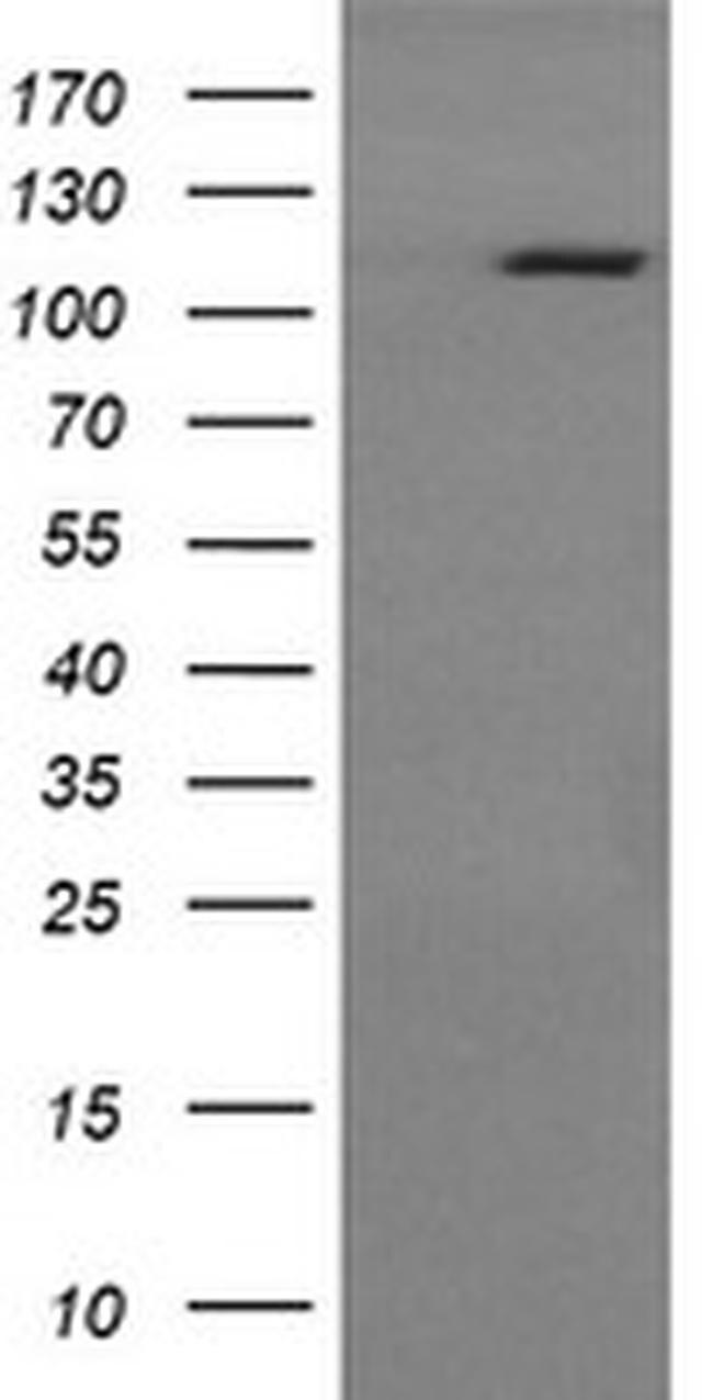 RASA1 Antibody in Western Blot (WB)