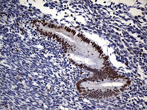 RB1 Antibody in Immunohistochemistry (Paraffin) (IHC (P))