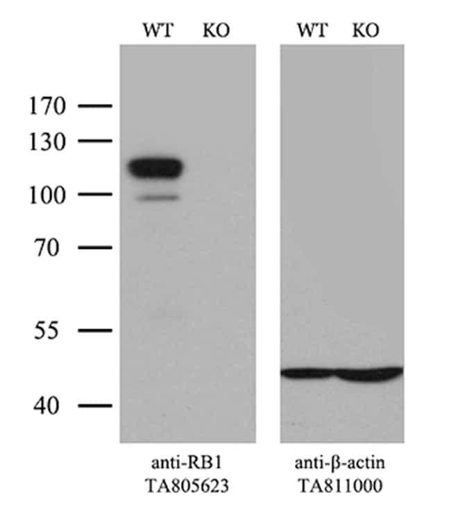 RB1 Antibody in Knockout