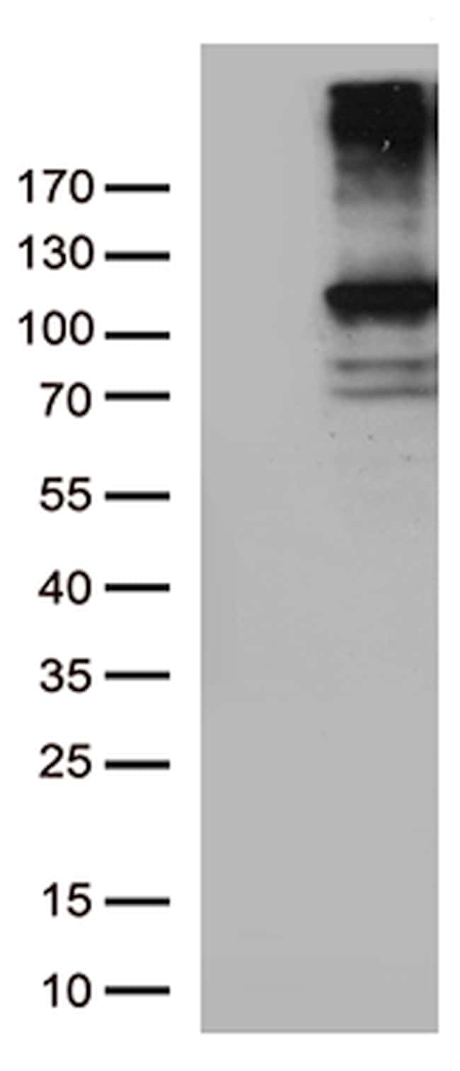 RB1 Antibody in Western Blot (WB)