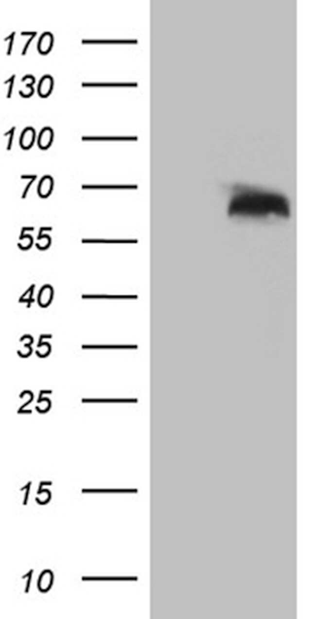 RBPJ Antibody in Western Blot (WB)