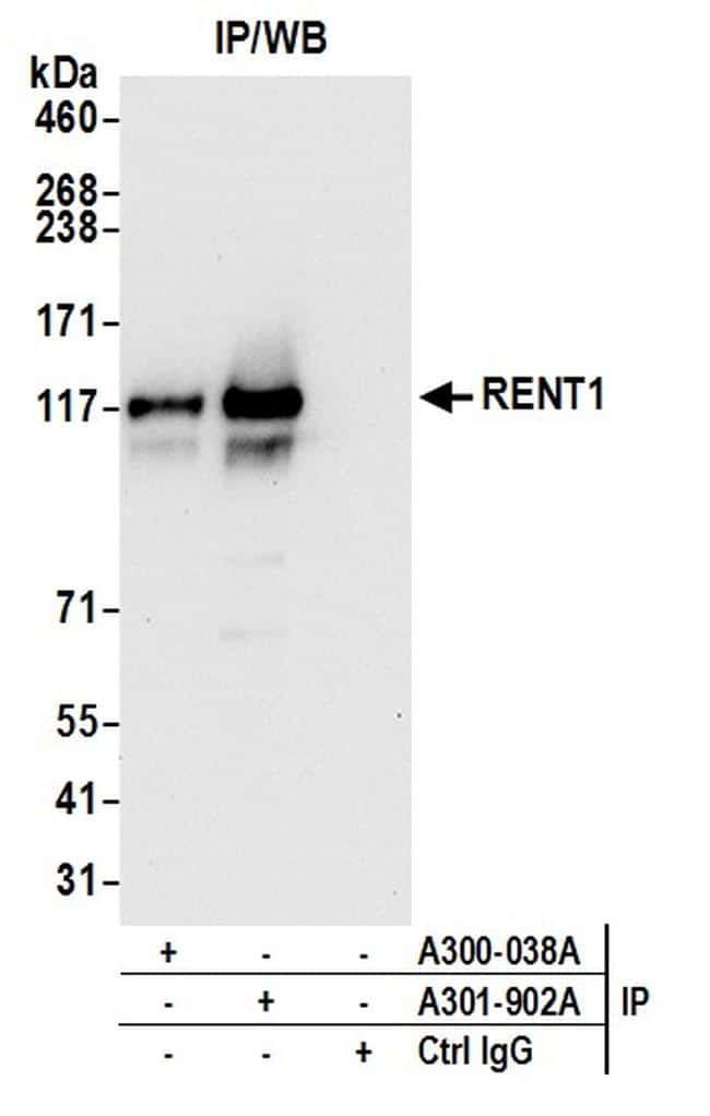 RENT1 Antibody in Western Blot (WB)