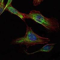 RICTOR Antibody in Immunofluorescence (IF)