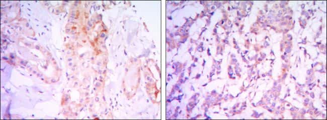RICTOR Antibody in Immunohistochemistry (IHC)