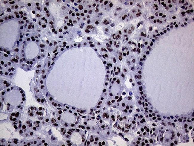 RING1 Antibody in Immunohistochemistry (Paraffin) (IHC (P))