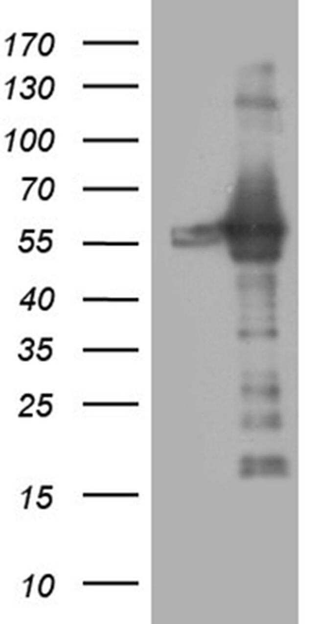 RING1 Antibody in Western Blot (WB)