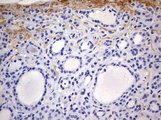 RIPK3 Antibody in Immunohistochemistry (Paraffin) (IHC (P))