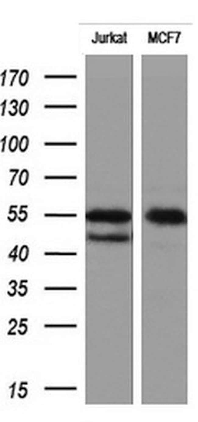 RIPK3 Antibody in Western Blot (WB)