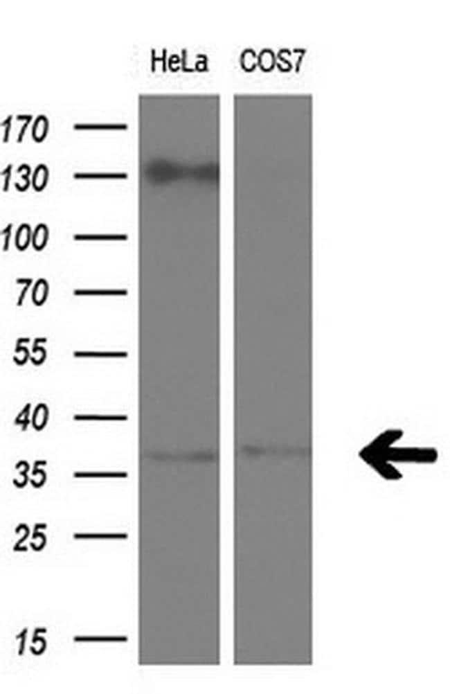 RLBP1 Antibody in Western Blot (WB)