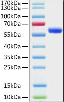 SARS-COV-2 Spike Protein (S-RBD)(aa319-541), mFc Tag Protein