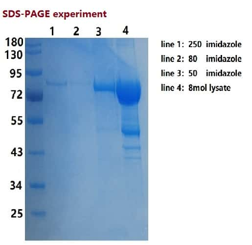 SARS-CoV-2 Nucleoprotein/Spike Protein (RBD) Protein