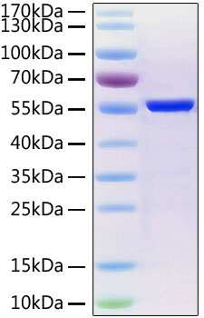 SARS-CoV-2 Nucleocapsid (aa1-419), His Tag Protein
