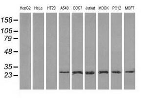 RPA2 Antibody in Western Blot (WB)