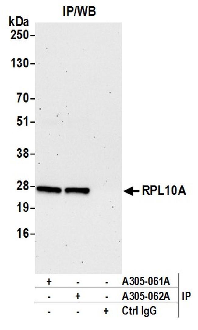 RPL10A/Ribosomal Protein L10a Antibody in Western Blot (WB)