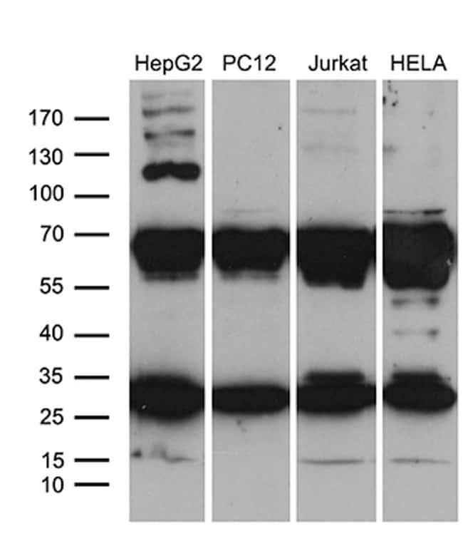 RPL10A Antibody in Western Blot (WB)