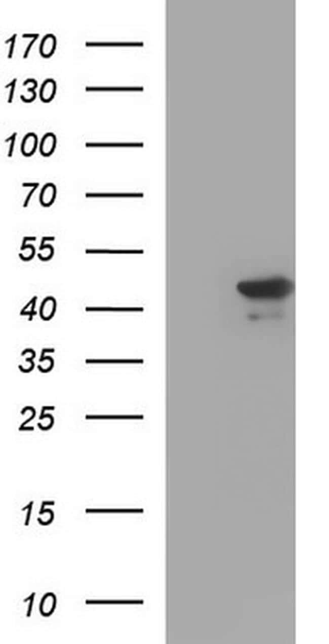 RPRD1B Antibody in Western Blot (WB)
