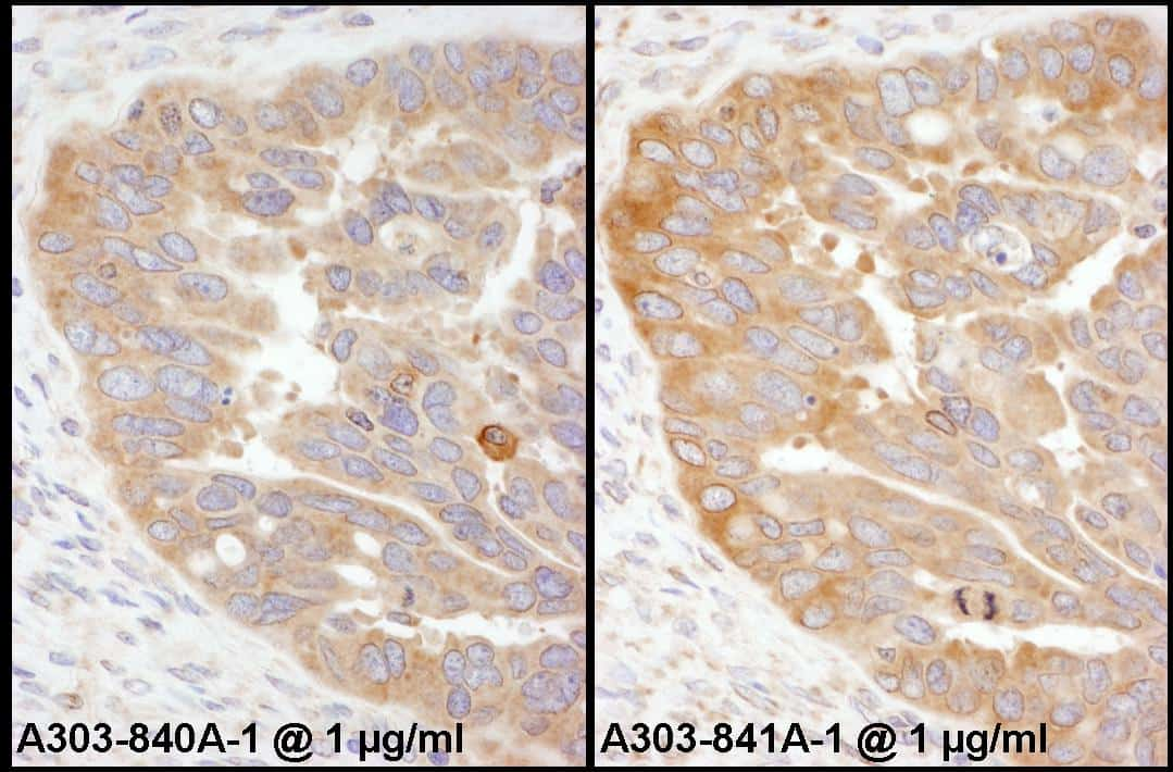 RPS3 Antibody in Immunohistochemistry (IHC)