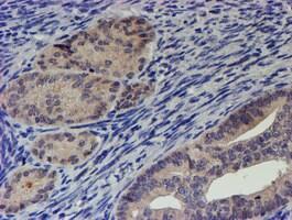 RPS6KB1 Antibody in Immunohistochemistry (Paraffin) (IHC (P))