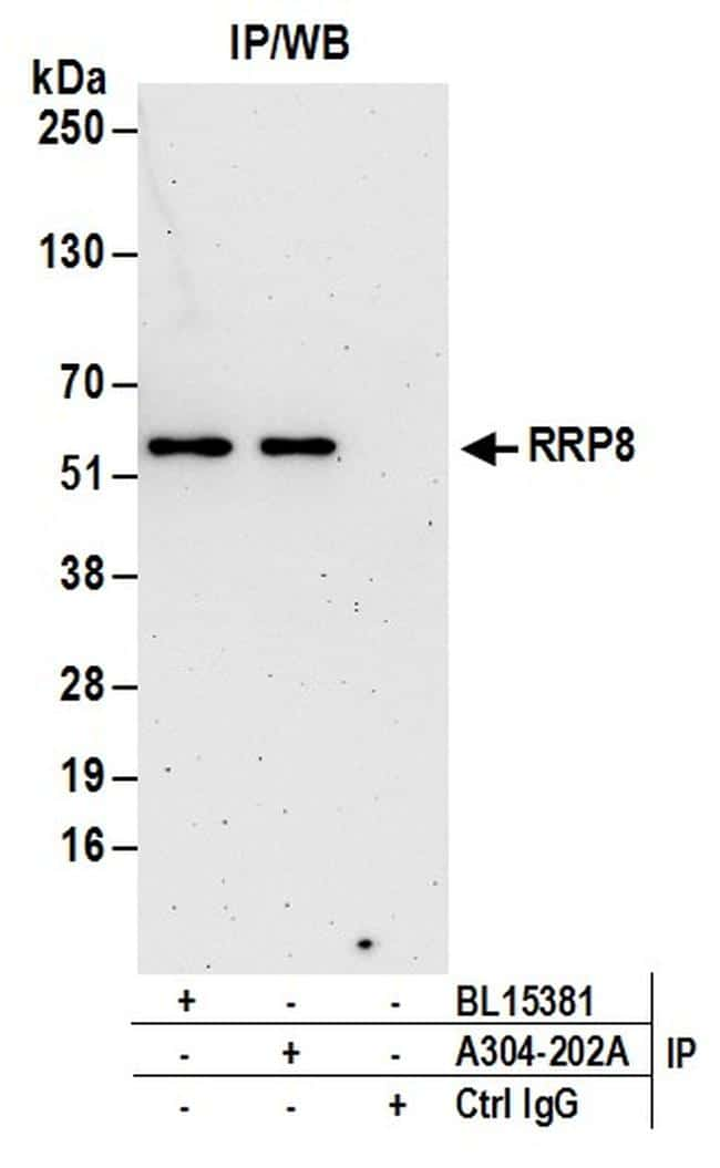 RRP8 Antibody in Immunoprecipitation (IP)