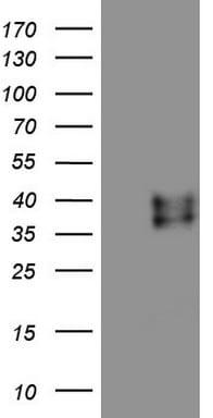 RSPO3 Antibody in Western Blot (WB)
