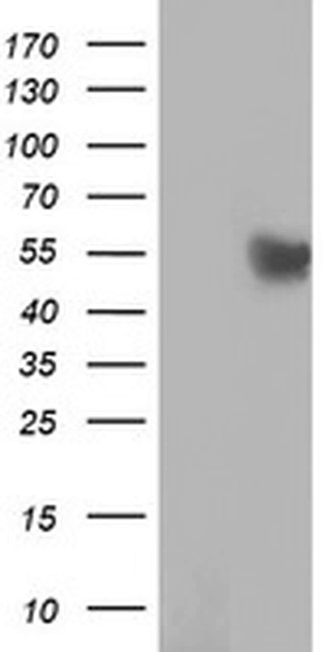 RUVBL2 Antibody in Western Blot (WB)