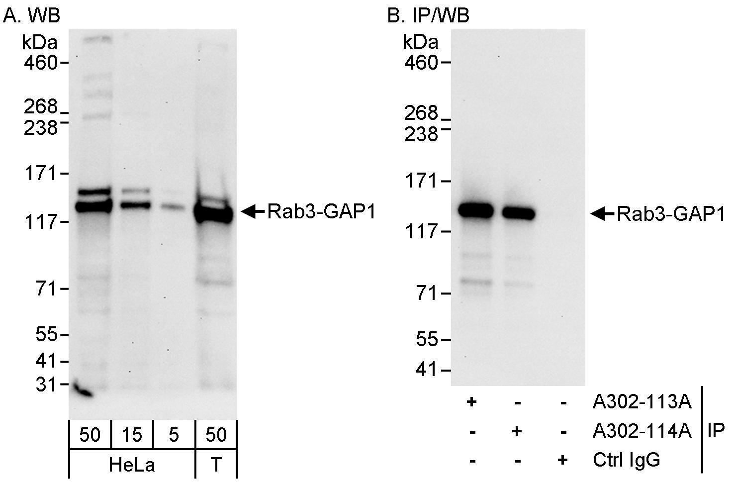 Rab3-GAP1 Antibody in Western Blot (WB)