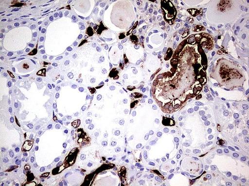 S100A9 Antibody in Immunohistochemistry (Paraffin) (IHC (P))