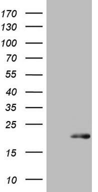 S100A9 Antibody in Western Blot (WB)