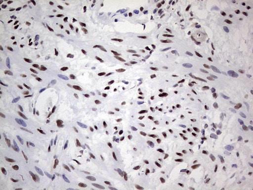 SAE1 Antibody in Immunohistochemistry (Paraffin) (IHC (P))