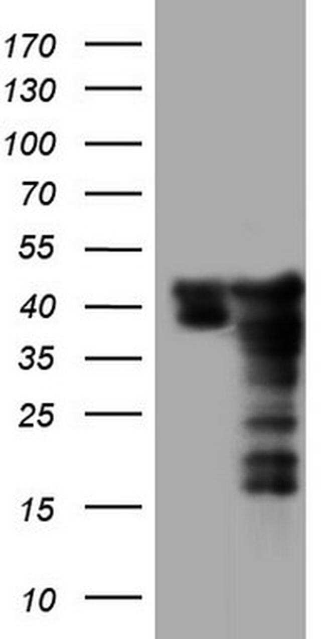 SAE1 Antibody in Western Blot (WB)