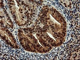 SAMHD1 Antibody in Immunohistochemistry (Paraffin) (IHC (P))