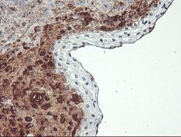 SCHIP1 Antibody in Immunohistochemistry (Paraffin) (IHC (P))