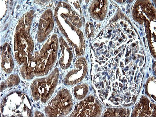 SCP2 Antibody in Immunohistochemistry (Paraffin) (IHC (P))