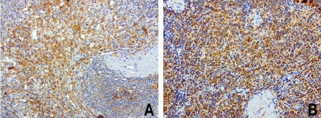 SDCBP Antibody in Immunohistochemistry (Paraffin) (IHC (P))