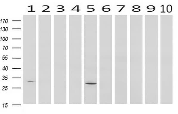 SDCBP Antibody in Western Blot (WB)