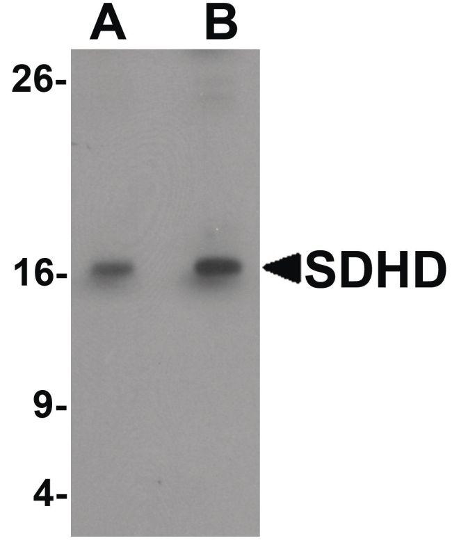 SDHD Antibody in Western Blot (WB)