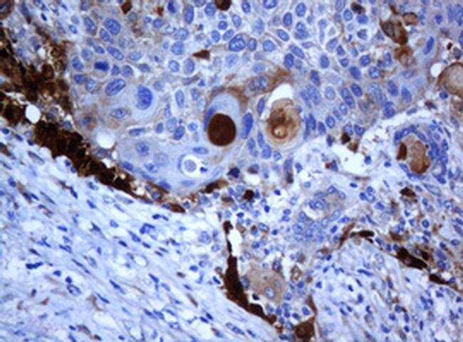 SELENBP1 Antibody in Immunohistochemistry (Paraffin) (IHC (P))