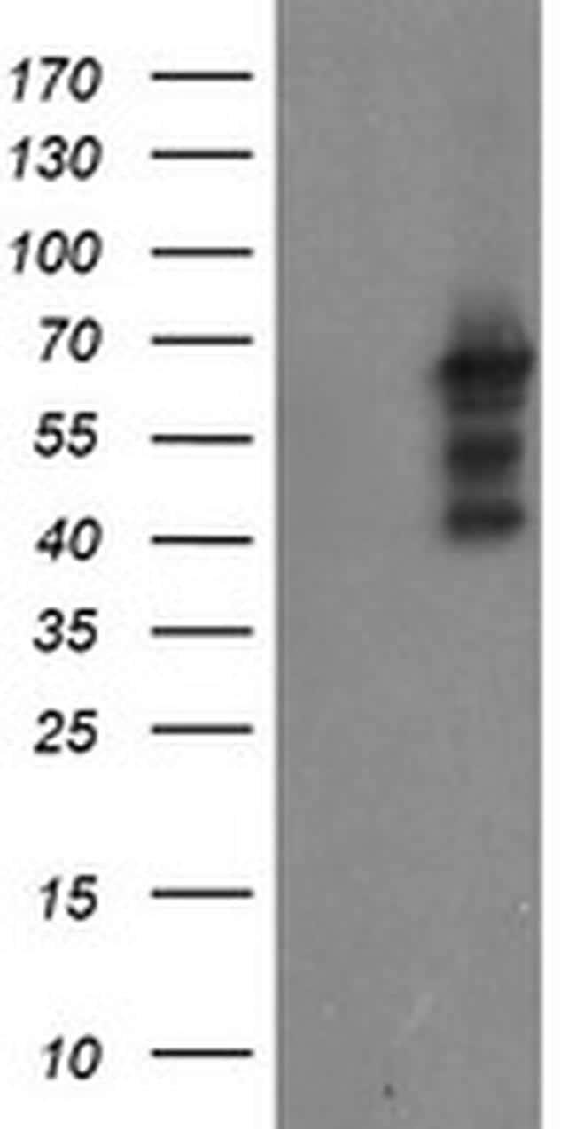 SENP2 Antibody in Western Blot (WB)