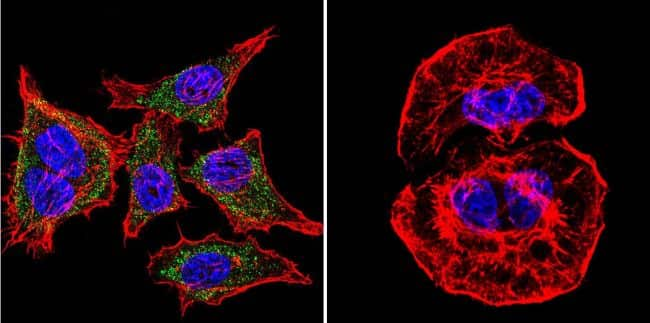 SERCA1 ATPase Antibody in Immunofluorescence (IF)