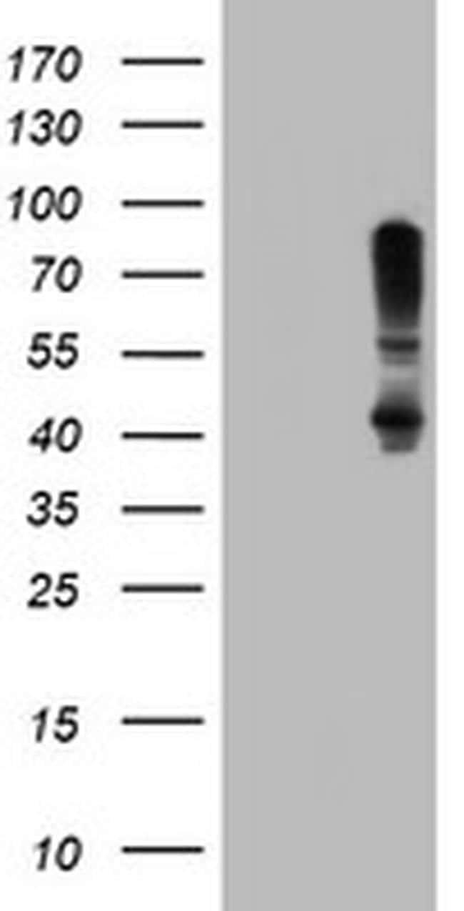 SERPINB1 Antibody in Western Blot (WB)