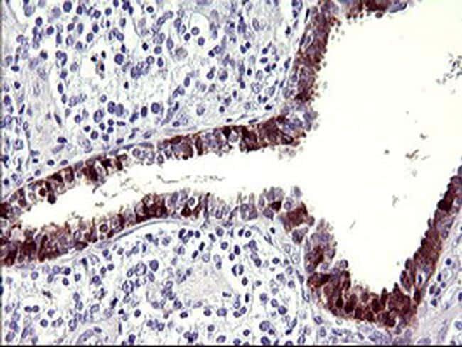 SERPINB3 Antibody in Immunohistochemistry (Paraffin) (IHC (P))