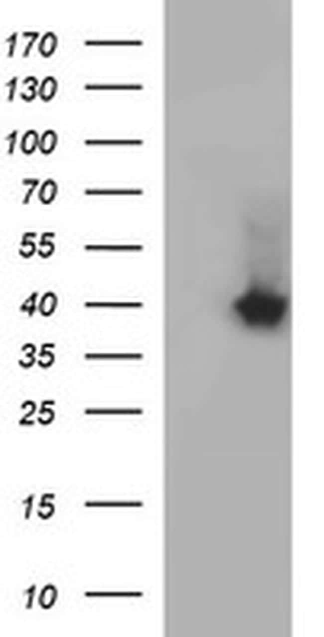 SERPINB3 Antibody in Western Blot (WB)