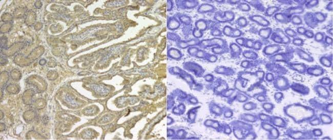 SERPINE2 Antibody in Immunohistochemistry (Paraffin) (IHC (P))