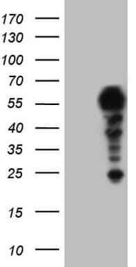 SETD2 Antibody in Western Blot (WB)